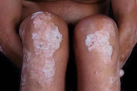 Schuppenflechte am Knie - diese 10 Hausmittel bei Schuppenflechte können helfen