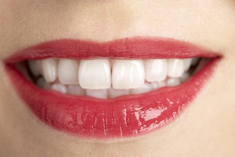 Frau mit weißen Zähnen nach dem Bleaching